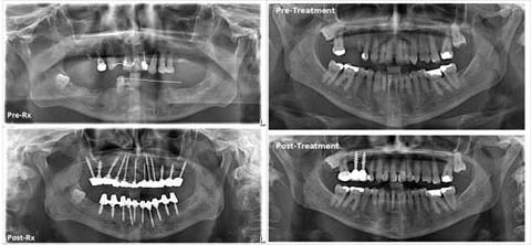 width quality of bone as well as the esthetic requirement thus more than one type of implant may be used for the same patient